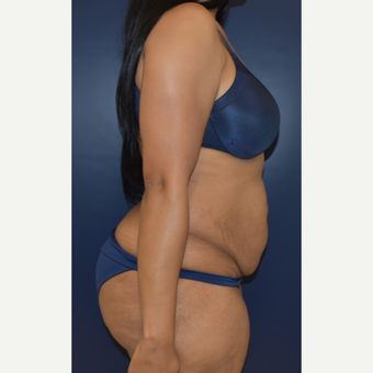 25-34 year old woman treated with Liposuction before 3844731