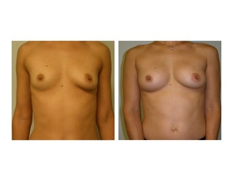 Fat Transfer Breast Augmentation before 608795