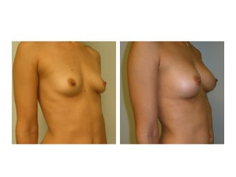 Fat Transfer Breast Augmentation after 608795