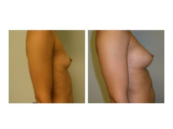 Fat Transfer Breast Augmentation 608795