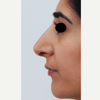 25-34 year old woman treated with Rhinoplasty after 3637917