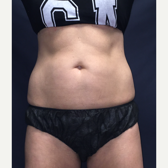 35-44 year old woman treated with SculpSure after 3725476