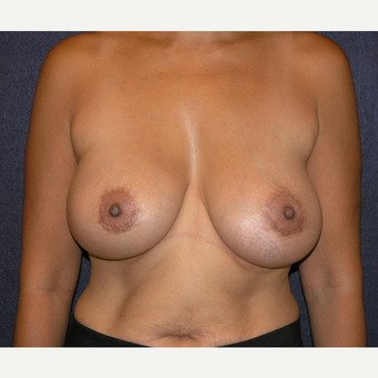 35-44 year old woman treated with Breast Augmentation after 3455629
