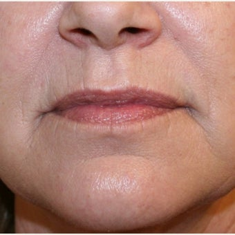 55-64 year old woman treated with Dermabrasion after 2609214