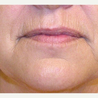55-64 year old woman treated with Dermabrasion before 2609214