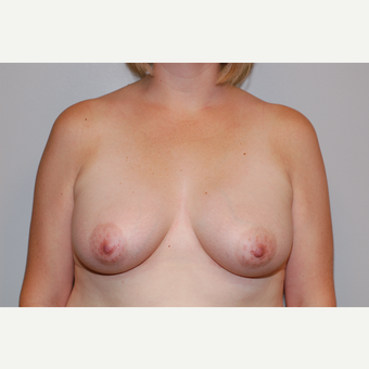 35-44 year old woman treated with Breast Augmentation after 3129696
