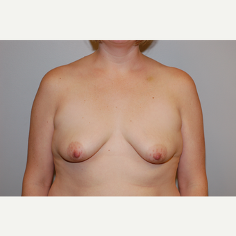 35-44 year old woman treated with Breast Augmentation before 3129696