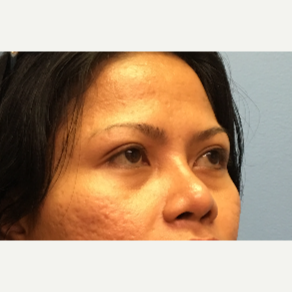 34 year old woman treated with Asian Rhinoplasty after 3036905