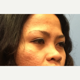 34 year old woman treated with Asian Rhinoplasty before 3036905