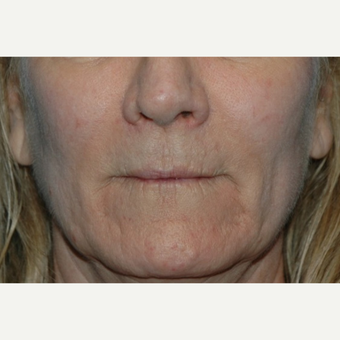 55-64 year old woman treated with Restylane before 3037716