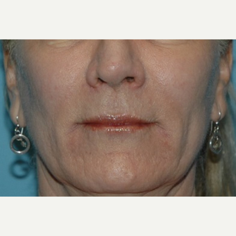 55-64 year old woman treated with Restylane after 3037716