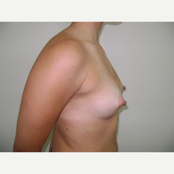 18-24 year old woman treated with Breast Augmentation before 3664034