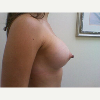 18-24 year old woman treated with Breast Augmentation after 3664034