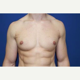 25-34 year old man treated with Male Breast Reduction after 3066131