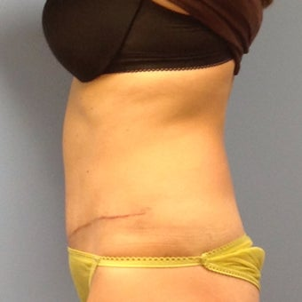 Woman treated with Tummy Tuck after Three Pregnancies after 2009774