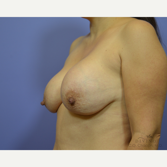 35-44 year old woman treated with Breast Lift with Implants before 3419892