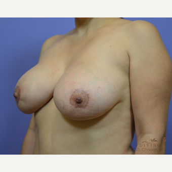35-44 year old woman treated with Breast Lift with Implants after 3419892