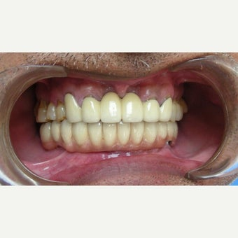 65-74 year old man treated with Dental Implants