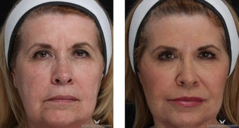 Voluma - A Natural Lift with Fillers before 1506644