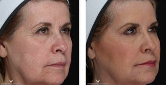 Voluma - A Natural Lift with Fillers 1506644