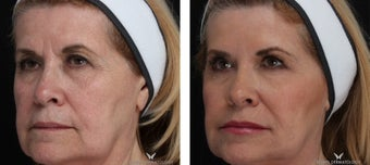 Voluma - A Natural Lift with Fillers after 1506644