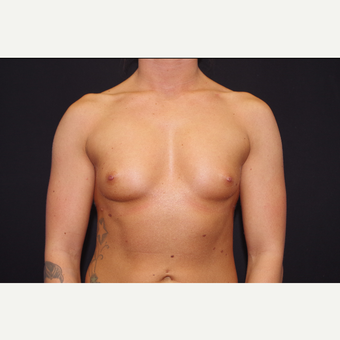 25-34 year old woman treated with Breast Augmentation before 3123735