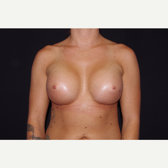 25-34 year old woman treated with Breast Augmentation after 3123735