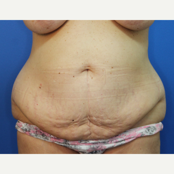 55-64 year old woman treated with Tummy Tuck before 3382951