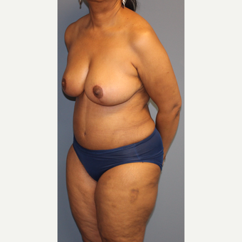45-54 year old woman treated with Breast Reduction after 3452675