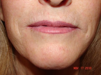 59 year old female with thin lips before 733382
