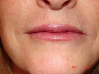 59 year old female with thin lips after 733382