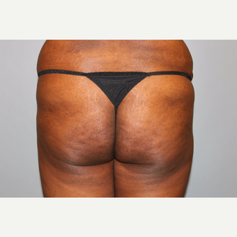 35-44 year old woman treated with Brazilian Butt Lift before 3565870