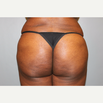 35-44 year old woman treated with Brazilian Butt Lift after 3565870