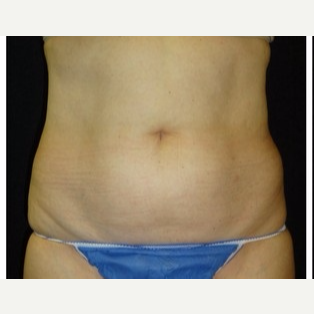 55-64 year old woman treated with CoolSculpting before 3181837