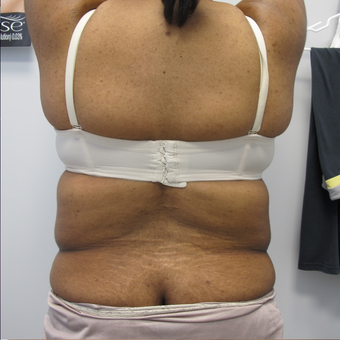 40 Year Old Female Liposuction of Abdomen, Waist, & Back  before 871074