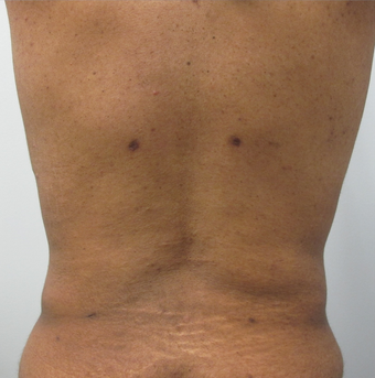 40 Year Old Female Liposuction of Abdomen, Waist, & Back  after 871074