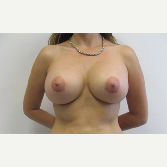 25-34 year old woman treated with Breast Augmentation after 3183029
