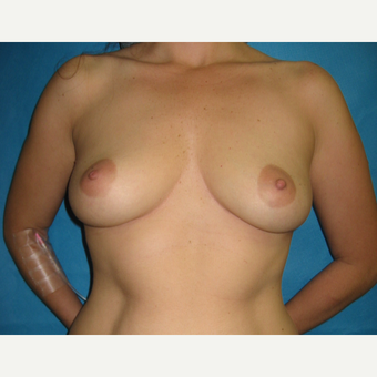 25-34 year old woman treated with Breast Augmentation before 3183029