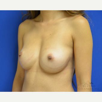 25-34 year old woman treated with Breast Augmentation before 3418974