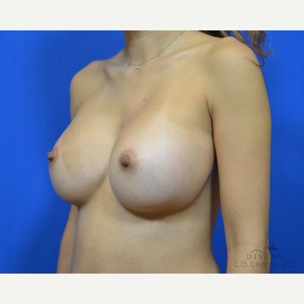 25-34 year old woman treated with Breast Augmentation after 3418974