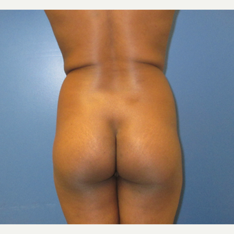25-34 year old woman treated with Brazilian Butt Lift before 3725410