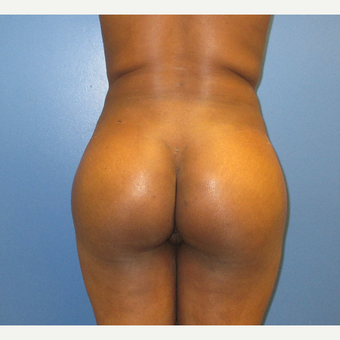 25-34 year old woman treated with Brazilian Butt Lift after 3725410