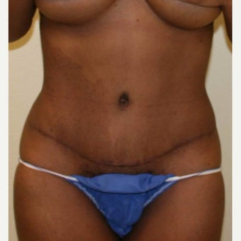 35-44 year old woman treated with Tummy Tuck after 2038465