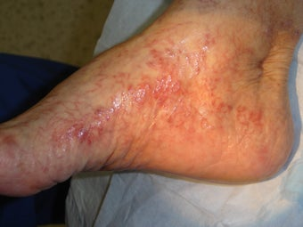 70 year old female with foot and ankle spider veins after 977059