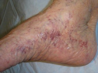 70 year old female with foot and ankle spider veins before 977059