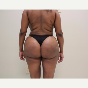 35-44 year old woman treated with Brazilian Butt Lift after 3338044