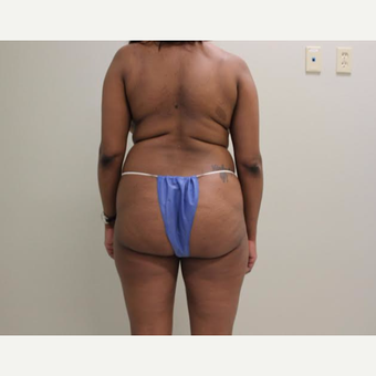35-44 year old woman treated with Brazilian Butt Lift before 3338044