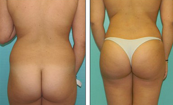 Brazilian Butt Lift Before & After after 1110790
