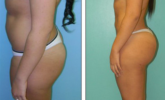 Brazilian Butt Lift Before & After before 1110790