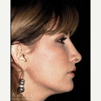 25-34 year old woman treated with Rhinoplasty after 3413919